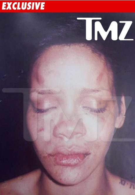 Picture of rihanna after the fight